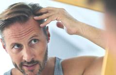 Сompresse per il trattamento di alopecia